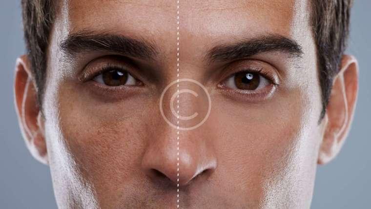 Male Treatments